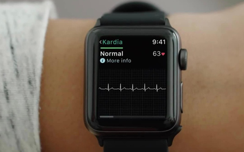 La función de electrocardiograma de Apple Watch incluida con watchOS 5.1.2