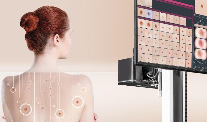 FotoFinder presenta la nueva generación de sistemas para la detección temprana del cáncer de piel